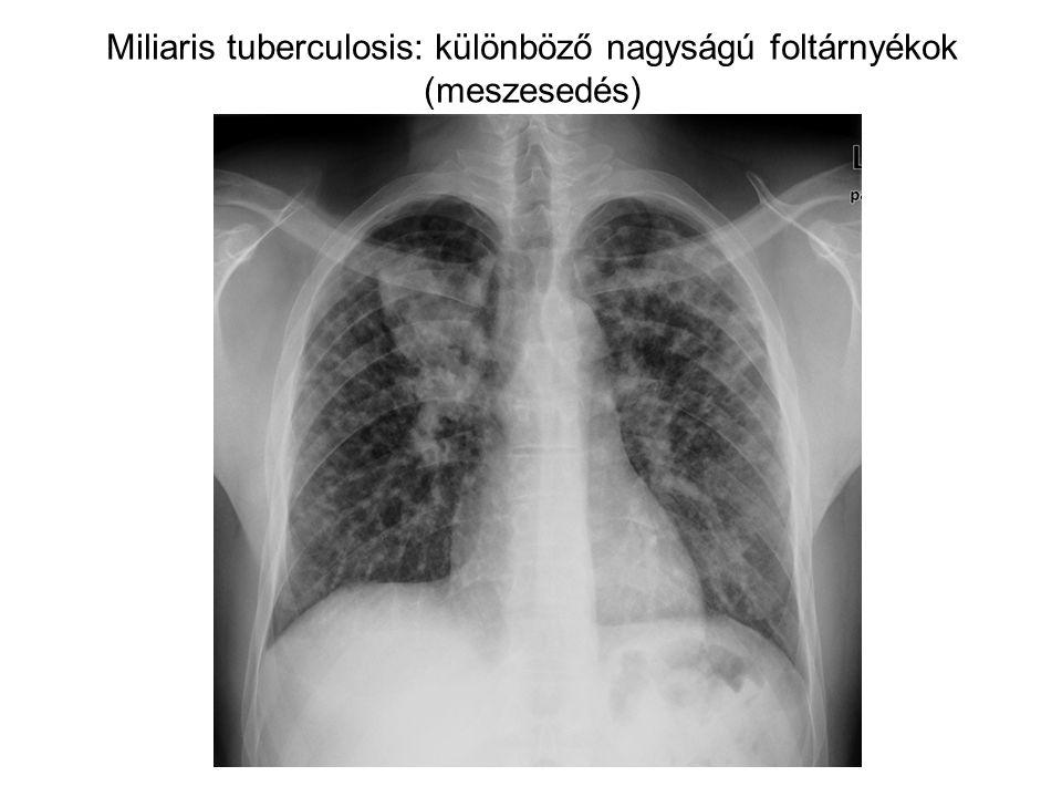 Miliaris tuberculosis: különböző nagyságú foltárnyékok (meszesedés)