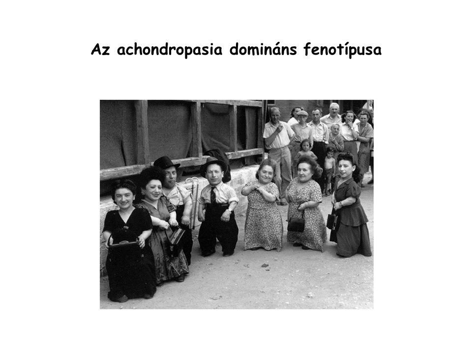 Az achondropasia domináns fenotípusa
