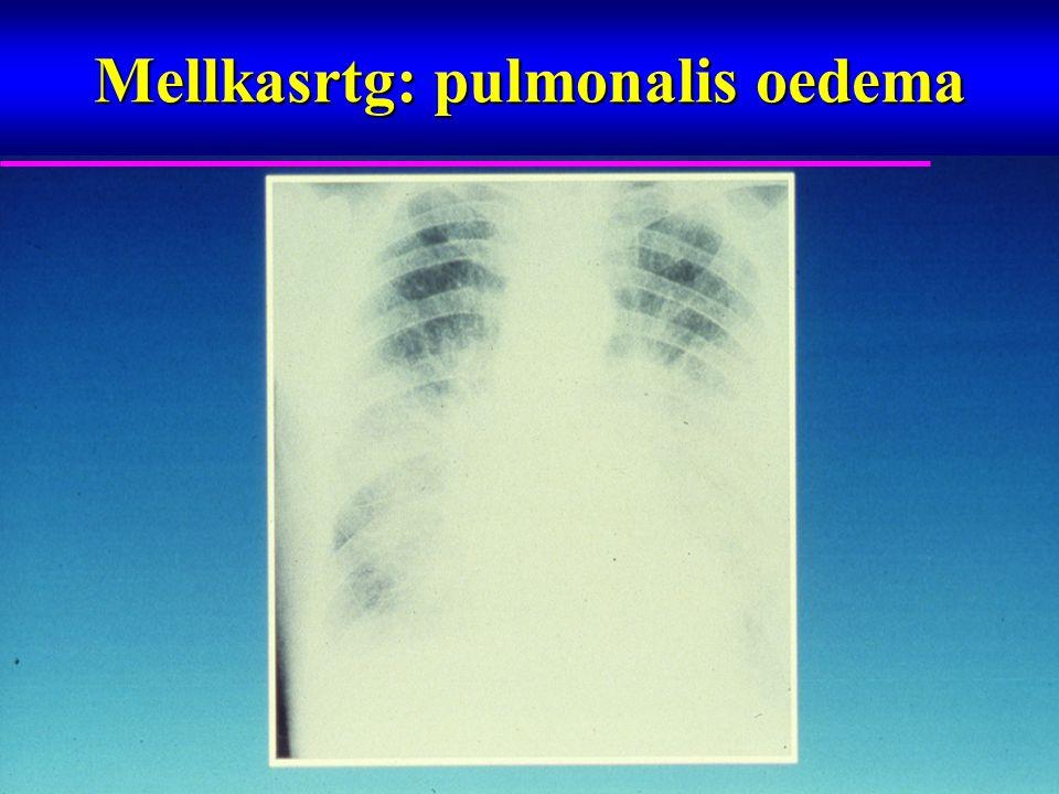 Idő (évek) Mortalitás (%) 0 10 20 30 40 012345 Metoprolol Carvedilol hazard ratio 0.83 95% CI 0.74-0.93 P = 0.0017 P = 0.0017 Kockázatnak kitett betegek száma Carvedilol151113661259 11551002383 Metoprolol151813591234 1105933352 COMET Elsődleges mortalitási végpont Poole-Wilson et al.