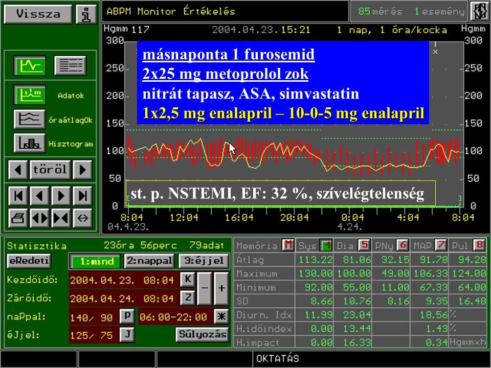 st. p. NSTEMI, EF: 32 %, szívelégtelenség másnaponta 1 furosemid 2x25 mg metoprolol zok nitrát tapasz, ASA, simvastatin 1x2,5 mg enalapril – 10-0-5 mg