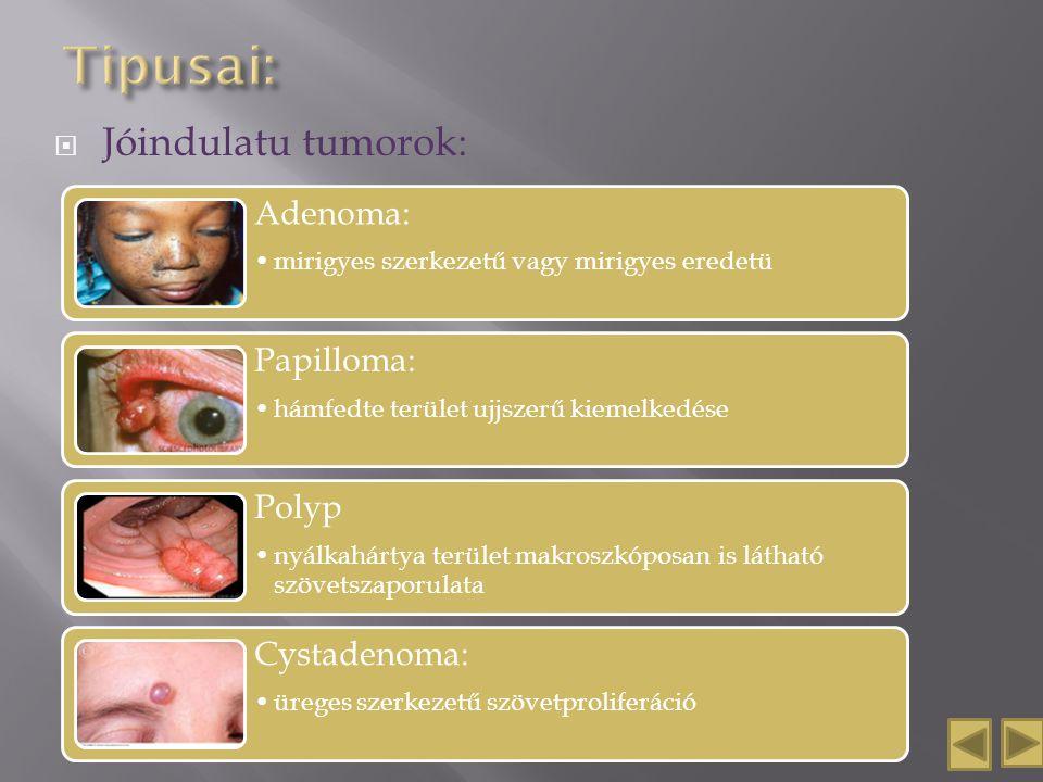  Jóindulatu tumorok: Adenoma: mirigyes szerkezetű vagy mirigyes eredetü Papilloma: hámfedte terület ujjszerű kiemelkedése Polyp nyálkahártya terület