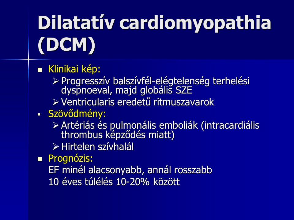 Dilatatív cardiomyopathia (DCM) Klinikai kép: Klinikai kép:  Progresszív balszívfél-elégtelenség terhelési dyspnoeval, majd globális SZE  Ventricula