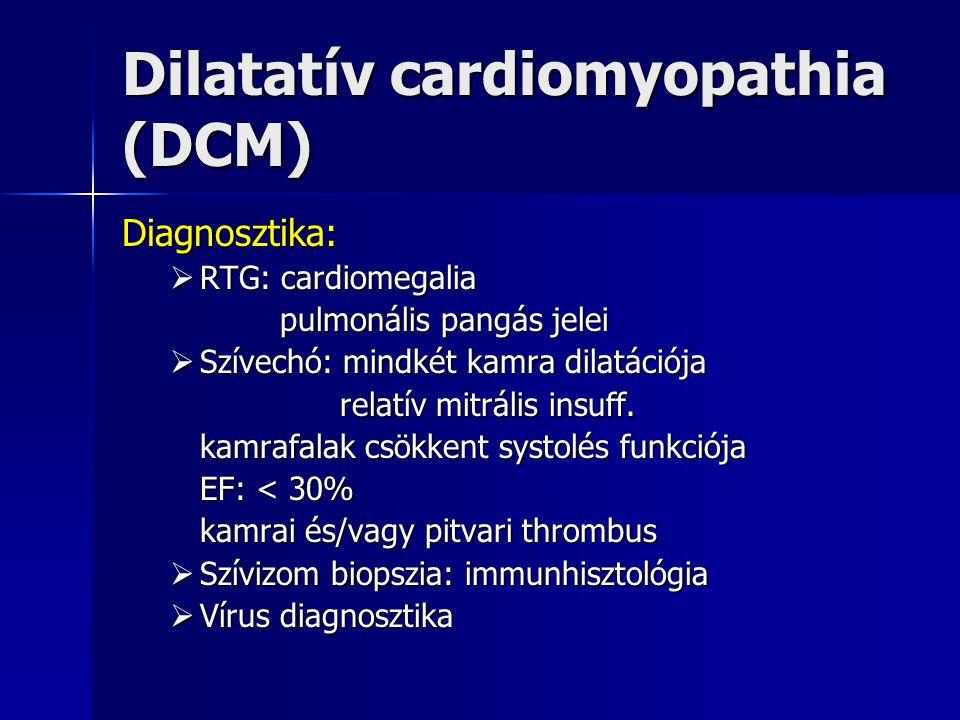 Dilatatív cardiomyopathia (DCM) Diagnosztika:  RTG: cardiomegalia pulmonális pangás jelei pulmonális pangás jelei  Szívechó: mindkét kamra dilatáció