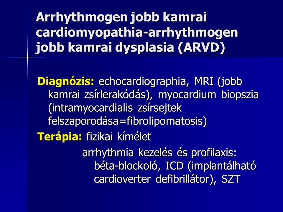 Arrhythmogen jobb kamrai cardiomyopathia-arrhythmogen jobb kamrai dysplasia (ARVD) Diagnózis: echocardiographia, MRI (jobb kamrai zsírlerakódás), myoc