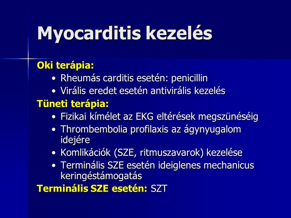 Myocarditis prognózisa  Vírusos myocarditis töbsége teljesen gyógyul  Gyakran ártalmatlan perzisztáló ritmuszavarok (pl.