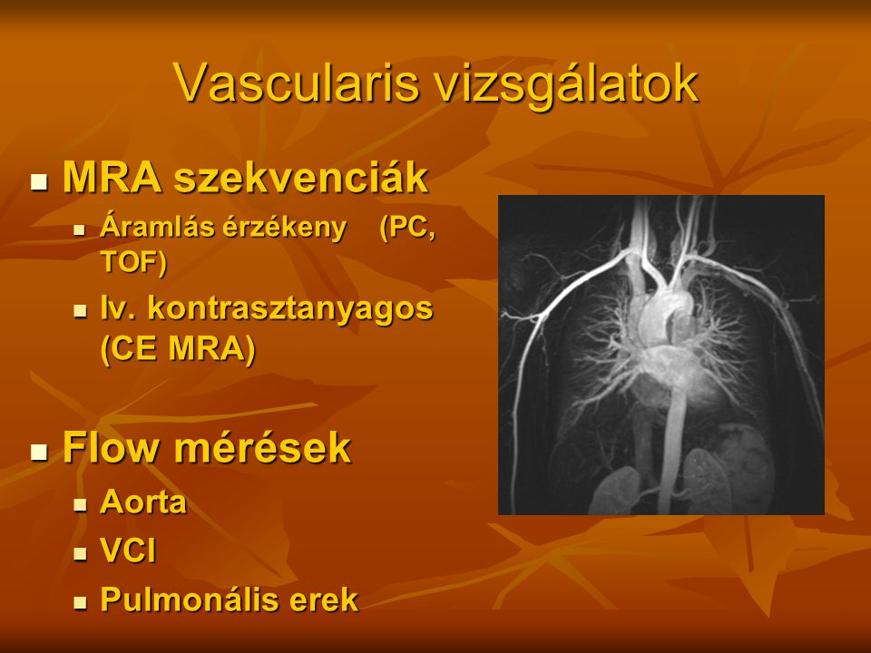 Vascularis vizsgálatok MRA szekvenciák MRA szekvenciák Áramlás érzékeny (PC, TOF) Áramlás érzékeny (PC, TOF) Iv. kontrasztanyagos (CE MRA) Iv. kontras