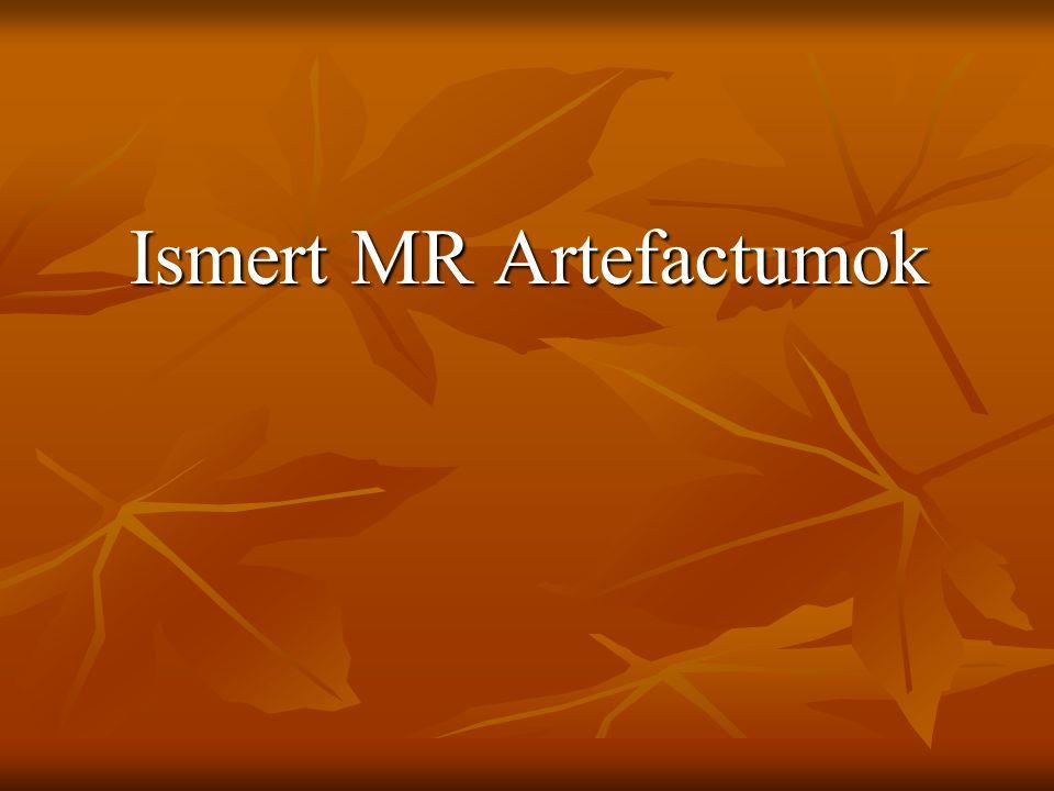Ismert MR Artefactumok