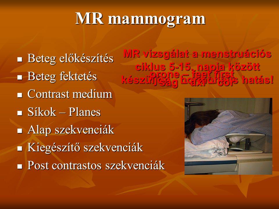 MR mammogram Beteg előkészítés Beteg előkészítés Beteg fektetés Beteg fektetés Contrast medium Contrast medium Síkok – Planes Síkok – Planes Alap szek