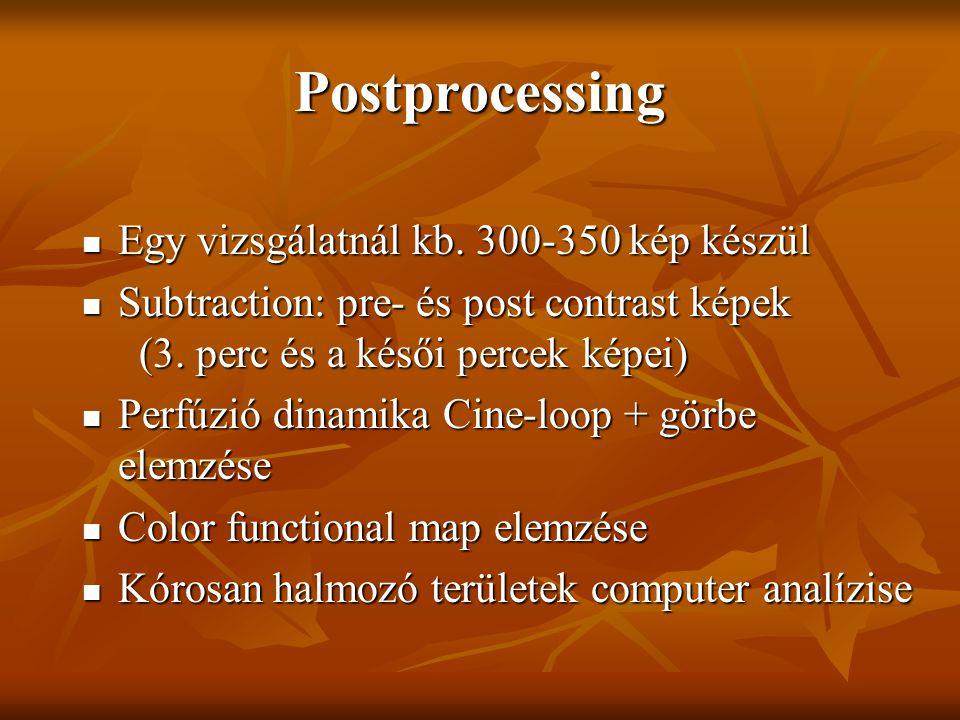 Postprocessing Egy vizsgálatnál kb. 300-350 kép készül Egy vizsgálatnál kb. 300-350 kép készül Subtraction: pre- és post contrast képek (3. perc és a
