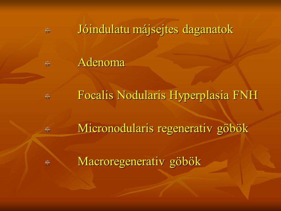Jóindulatu májsejtes daganatok Jóindulatu májsejtes daganatok Adenoma Adenoma Focalis Nodularis Hyperplasia FNH Focalis Nodularis Hyperplasia FNH Micr