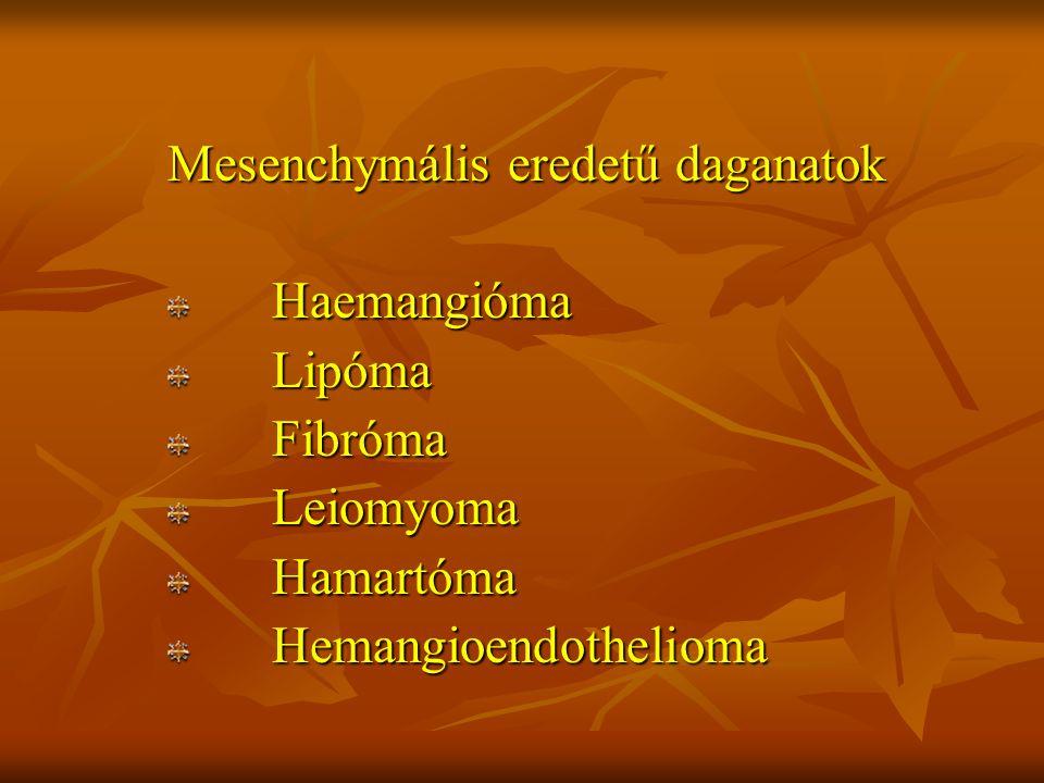 Mesenchymális eredetű daganatok Haemangióma Haemangióma Lipóma Lipóma Fibróma Fibróma Leiomyoma Leiomyoma Hamartóma Hamartóma Hemangioendothelioma Hem