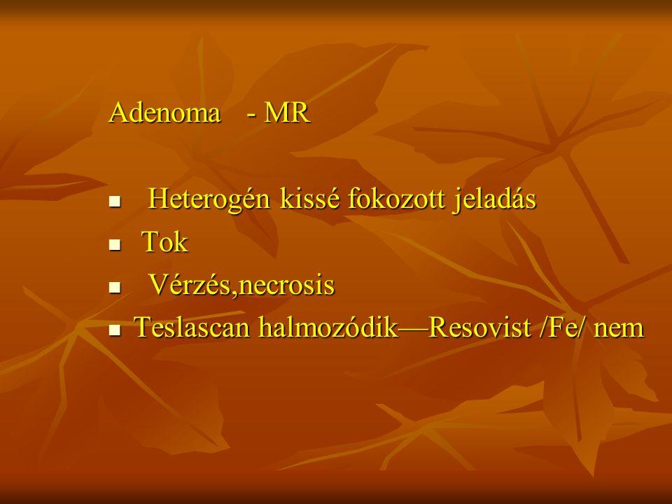 Adenoma - MR Heterogén kissé fokozott jeladás Heterogén kissé fokozott jeladás Tok Tok Vérzés,necrosis Vérzés,necrosis Teslascan halmozódik—Resovist /