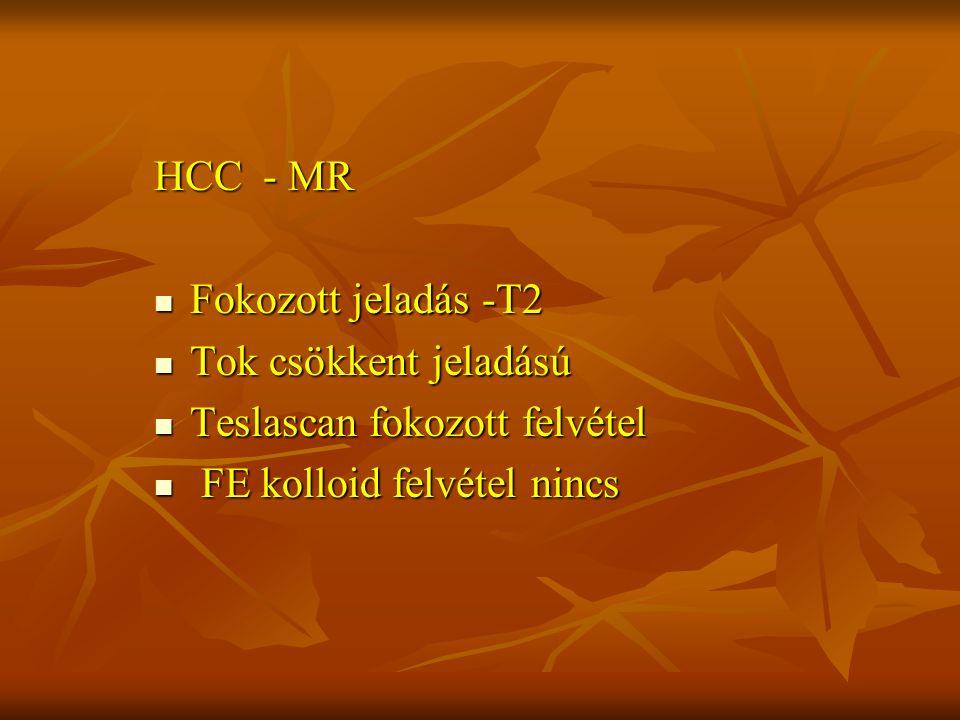 HCC - MR Fokozott jeladás -T2 Fokozott jeladás -T2 Tok csökkent jeladású Tok csökkent jeladású Teslascan fokozott felvétel Teslascan fokozott felvétel