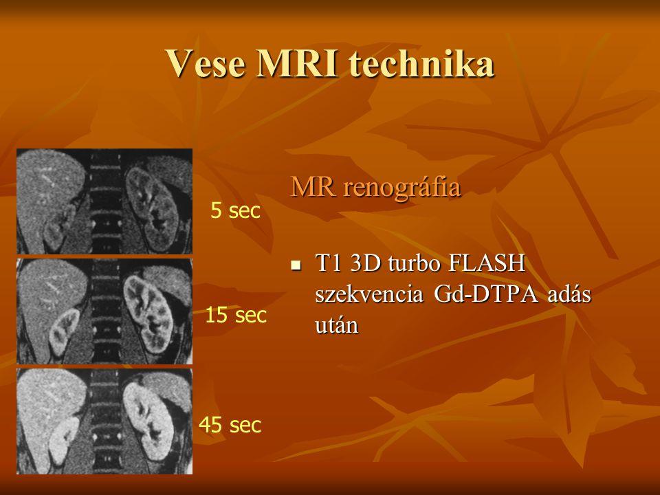 Vese MRI technika MR renográfia T1 3D turbo FLASH szekvencia Gd-DTPA adás után T1 3D turbo FLASH szekvencia Gd-DTPA adás után 5 sec 15 sec 45 sec