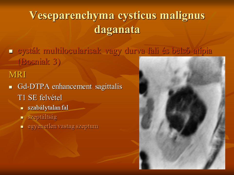 Veseparenchyma cysticus malignus daganata cysták multilocularisak vagy durva fali és belső atípia (Bosniak 3) cysták multilocularisak vagy durva fali