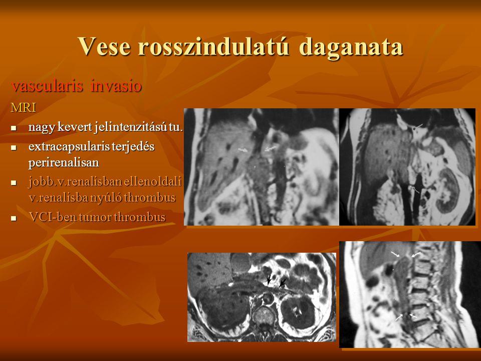 Vese rosszindulatú daganata vascularis invasio MRI nagy kevert jelintenzitású tu. nagy kevert jelintenzitású tu. extracapsularis terjedés perirenalisa
