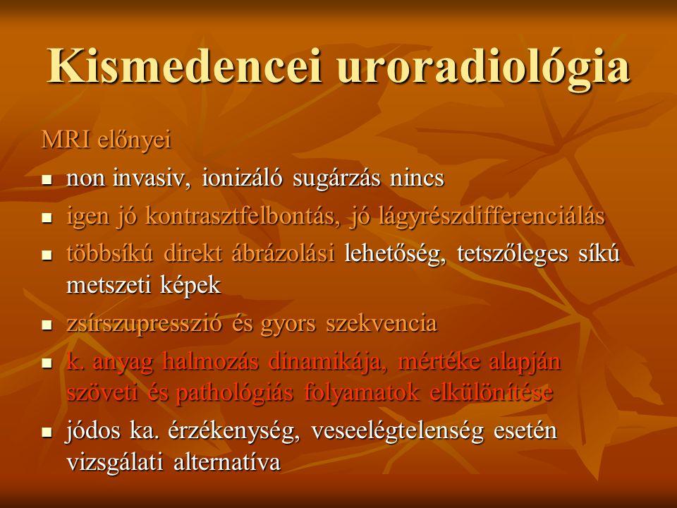 Kismedencei uroradiológia MRI előnyei non invasiv, ionizáló sugárzás nincs non invasiv, ionizáló sugárzás nincs igen jó kontrasztfelbontás, jó lágyrés