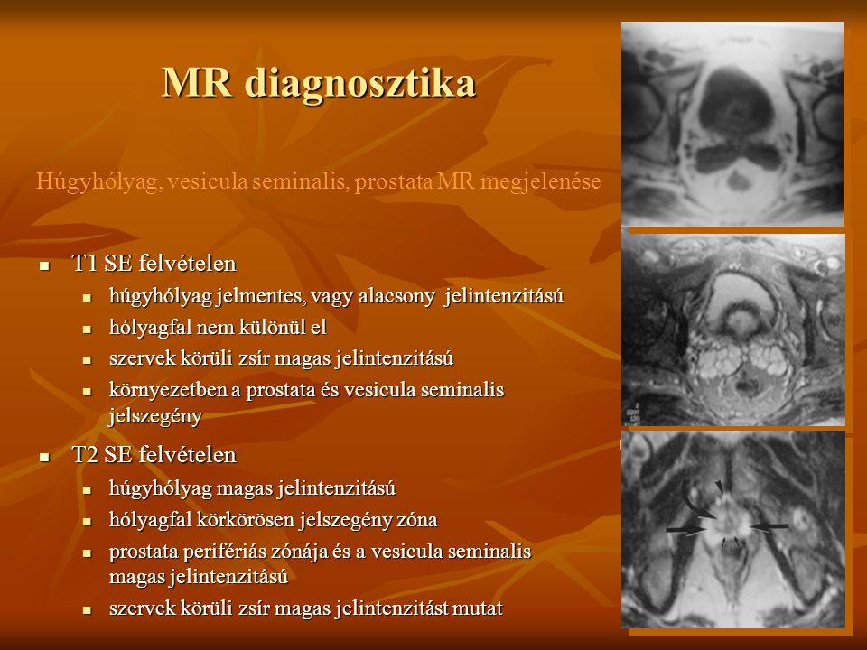 MR diagnosztika Húgyhólyag, vesicula seminalis, prostata MR megjelenése T1 SE felvételen T1 SE felvételen húgyhólyag jelmentes, vagy alacsony jelinten