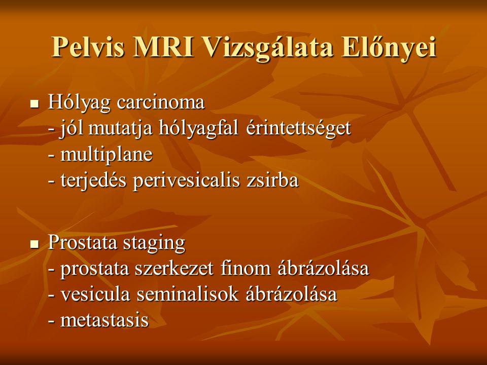 Pelvis MRI Vizsgálata Előnyei Hólyag carcinoma - jól mutatja hólyagfal érintettséget - multiplane - terjedés perivesicalis zsirba Hólyag carcinoma - j