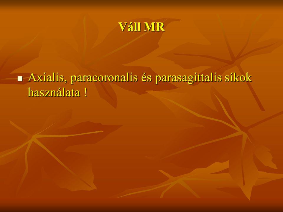 Váll MR Axialis, paracoronalis és parasagittalis síkok használata ! Axialis, paracoronalis és parasagittalis síkok használata !
