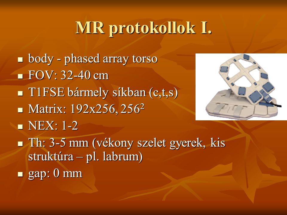 MR protokollok I. body - phased array torso body - phased array torso FOV: 32-40 cm FOV: 32-40 cm T1FSE bármely síkban (c,t,s) T1FSE bármely síkban (c
