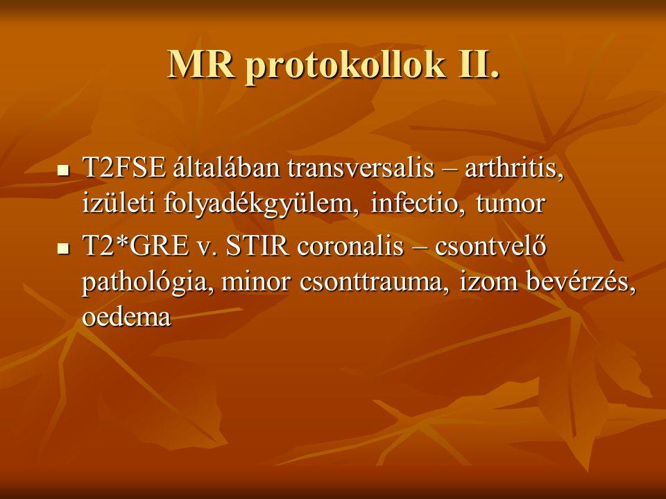 MR protokollok II. T2FSE általában transversalis – arthritis, izületi folyadékgyülem, infectio, tumor T2FSE általában transversalis – arthritis, izüle
