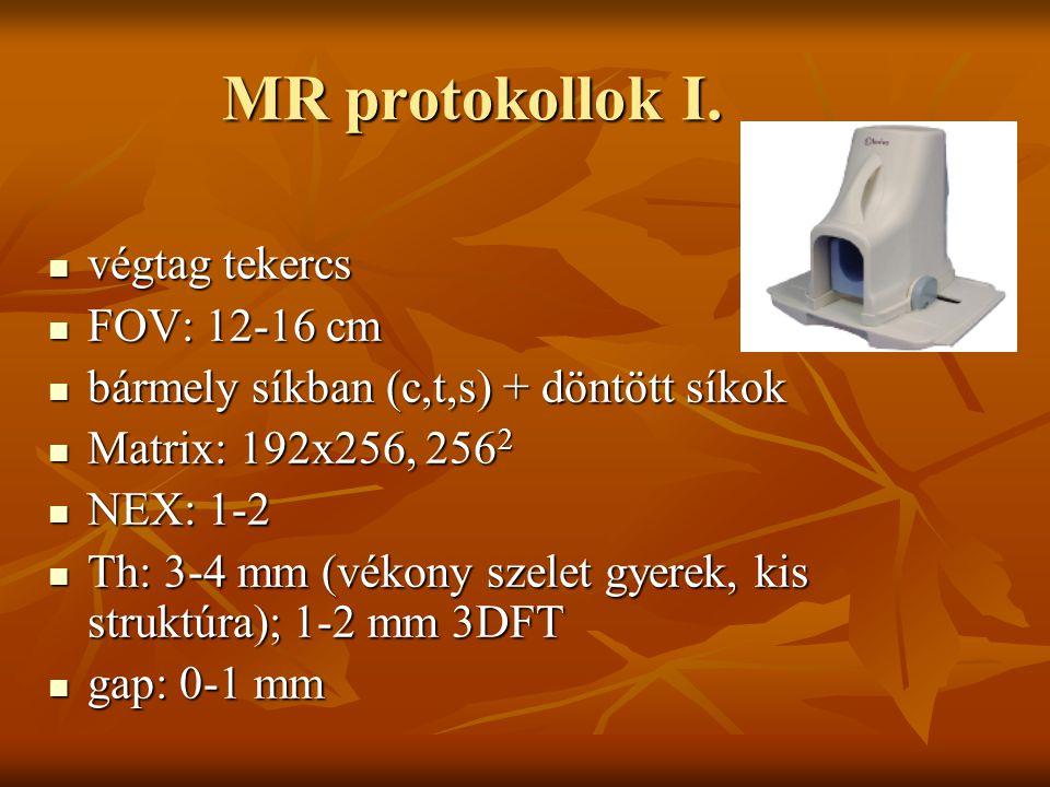 MR protokollok I. végtag tekercs végtag tekercs FOV: 12-16 cm FOV: 12-16 cm bármely síkban (c,t,s) + döntött síkok bármely síkban (c,t,s) + döntött sí