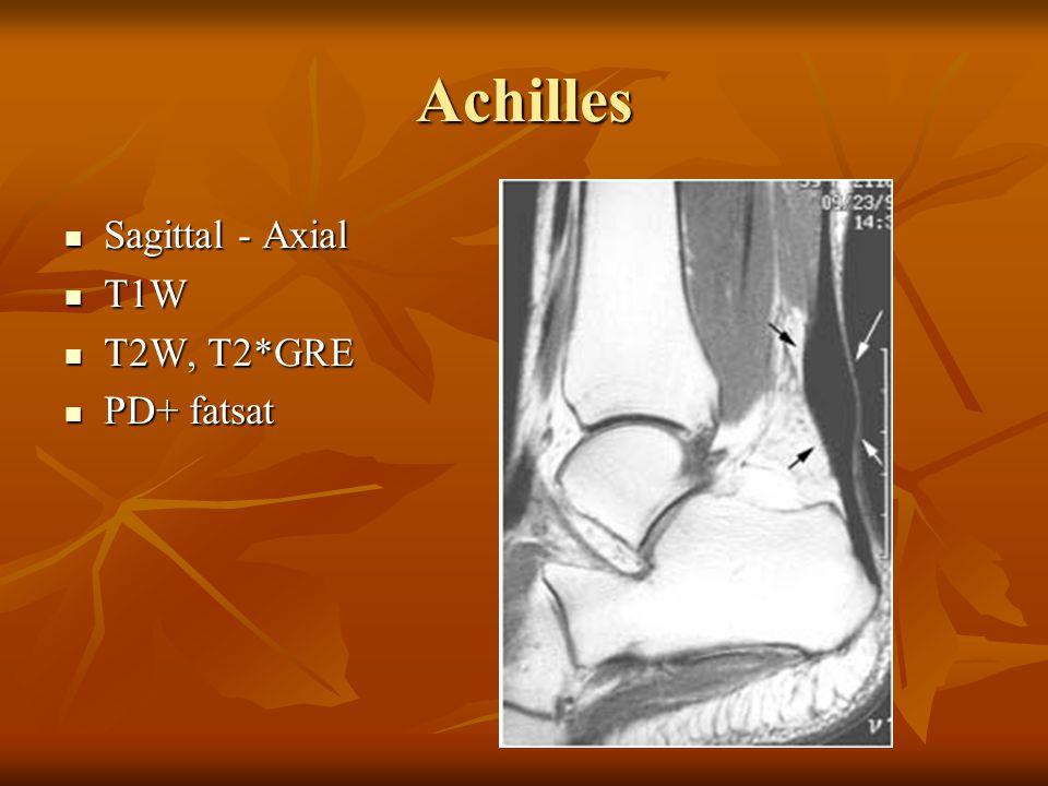 Achilles Sagittal - Axial Sagittal - Axial T1W T1W T2W, T2*GRE T2W, T2*GRE PD+ fatsat PD+ fatsat