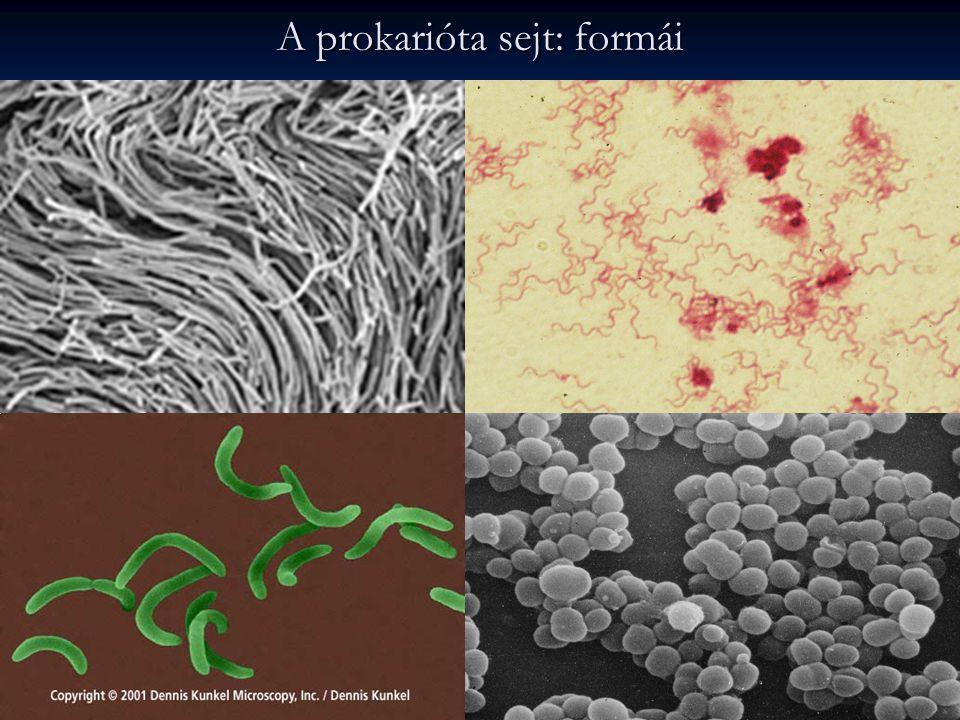 A prokarióta sejt: formái