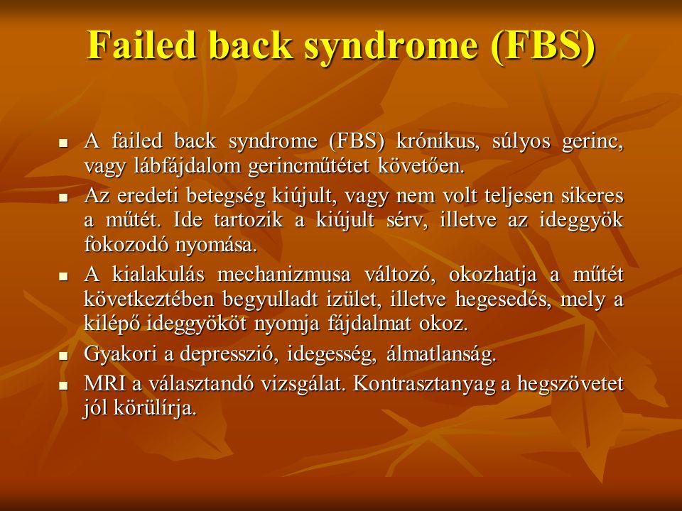 Failed back syndrome (FBS) A failed back syndrome (FBS) krónikus, súlyos gerinc, vagy lábfájdalom gerincműtétet követően.