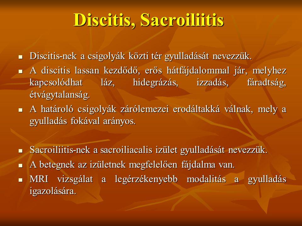 Discitis, Sacroiliitis Discitis-nek a csigolyák közti tér gyulladását nevezzük.
