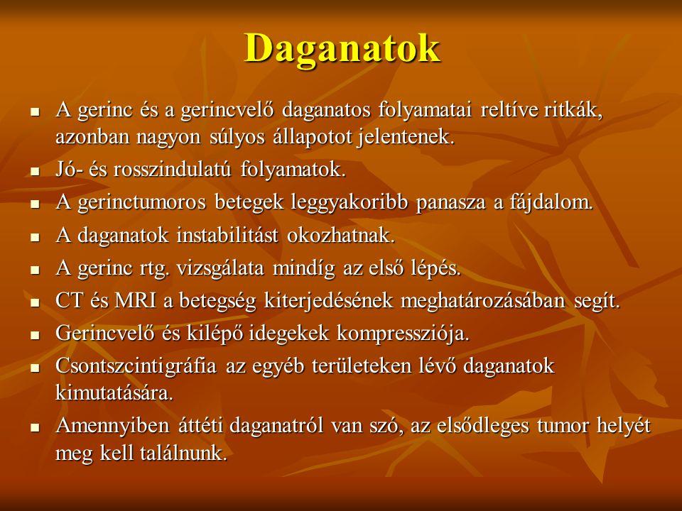 Daganatok A gerinc és a gerincvelő daganatos folyamatai reltíve ritkák, azonban nagyon súlyos állapotot jelentenek.