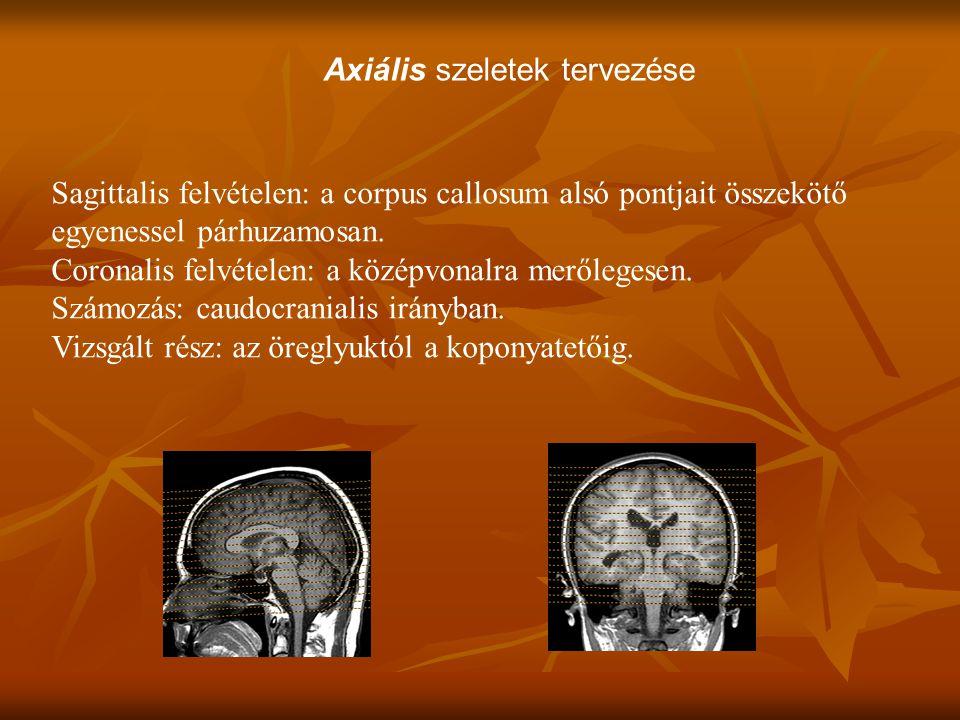 Axiális szeletek tervezése Sagittalis felvételen: a corpus callosum alsó pontjait összekötő egyenessel párhuzamosan.
