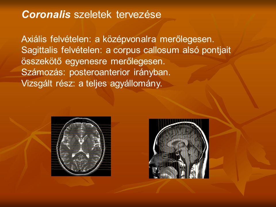 Coronalis szeletek tervezése Axiális felvételen: a középvonalra merőlegesen.