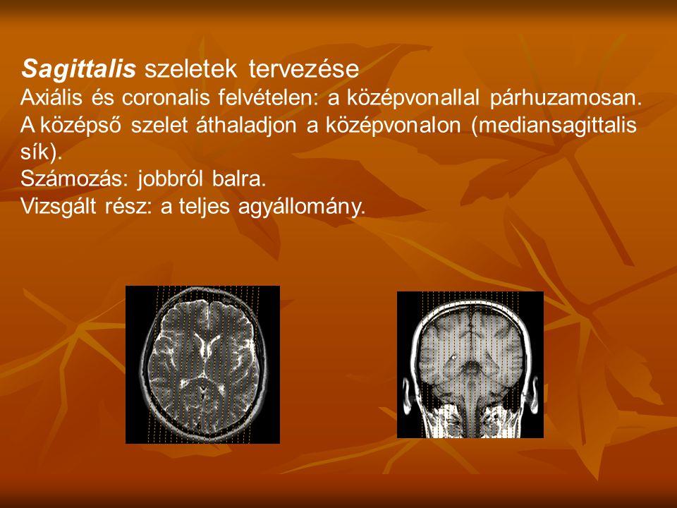 Sagittalis szeletek tervezése Axiális és coronalis felvételen: a középvonallal párhuzamosan.