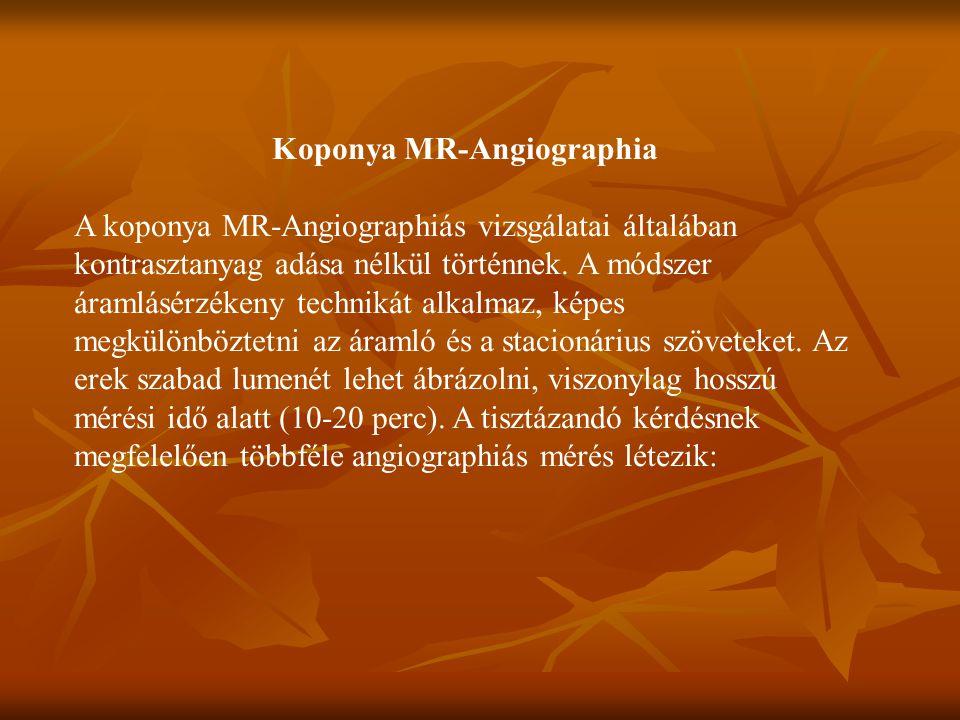 Koponya MR-Angiographia A koponya MR-Angiographiás vizsgálatai általában kontrasztanyag adása nélkül történnek.