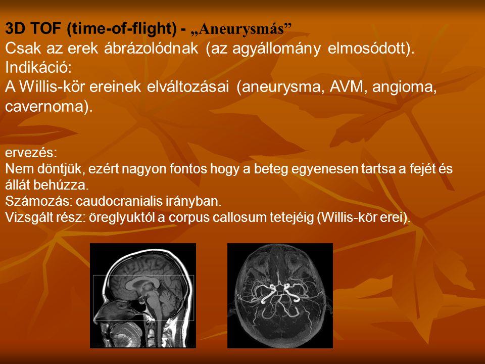 """3D TOF (time-of-flight) - """"Aneurysmás Csak az erek ábrázolódnak (az agyállomány elmosódott)."""