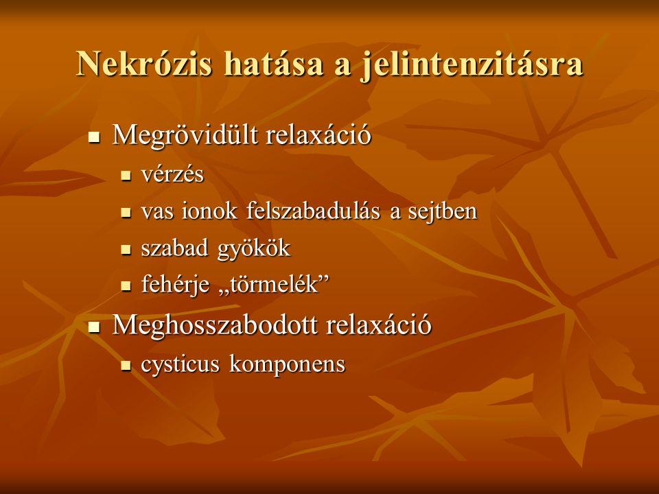 """Nekrózis hatása a jelintenzitásra Megrövidült relaxáció Megrövidült relaxáció vérzés vérzés vas ionok felszabadulás a sejtben vas ionok felszabadulás a sejtben szabad gyökök szabad gyökök fehérje """"törmelék fehérje """"törmelék Meghosszabodott relaxáció Meghosszabodott relaxáció cysticus komponens cysticus komponens"""