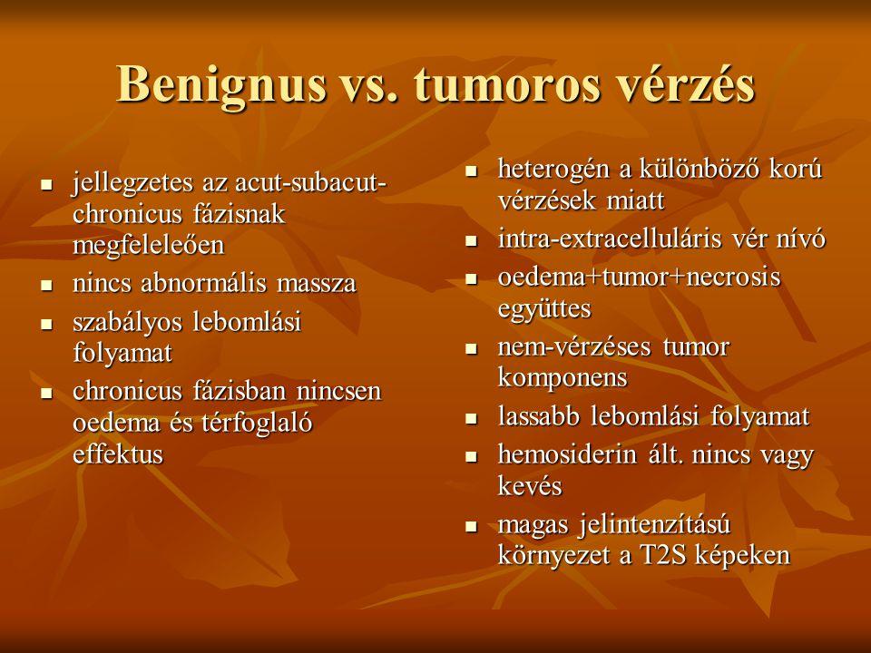 Benignus vs.