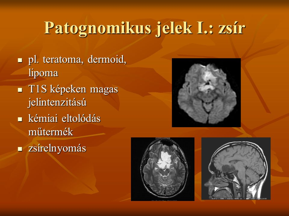 Patognomikus jelek I.: zsír pl.teratoma, dermoid, lipoma pl.