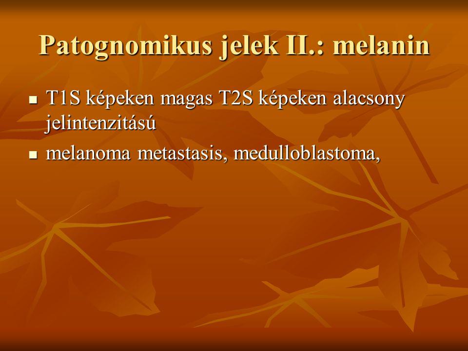 Patognomikus jelek II.: melanin T1S képeken magas T2S képeken alacsony jelintenzitású T1S képeken magas T2S képeken alacsony jelintenzitású melanoma metastasis, medulloblastoma, melanoma metastasis, medulloblastoma,