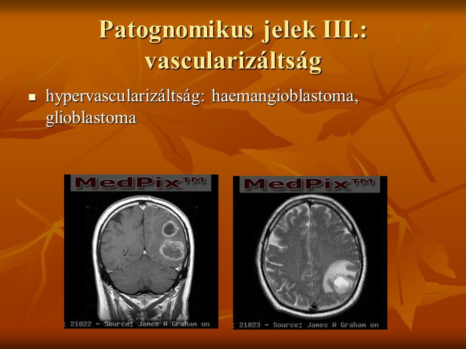 Patognomikus jelek III.: vascularizáltság hypervascularizáltság: haemangioblastoma, glioblastoma hypervascularizáltság: haemangioblastoma, glioblastoma