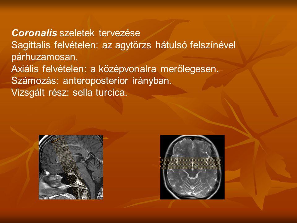 Coronalis szeletek tervezése Sagittalis felvételen: az agytörzs hátulsó felszínével párhuzamosan.