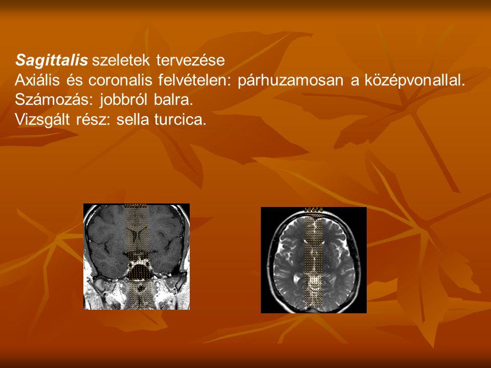 Sagittalis szeletek tervezése Axiális és coronalis felvételen: párhuzamosan a középvonallal.