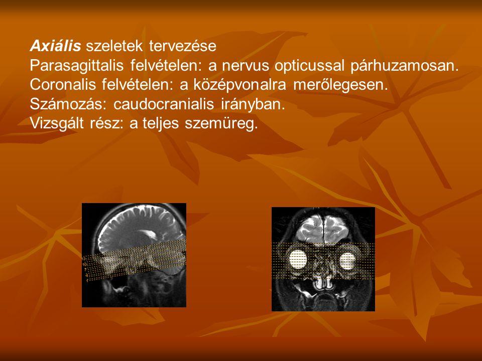 Axiális szeletek tervezése Parasagittalis felvételen: a nervus opticussal párhuzamosan.