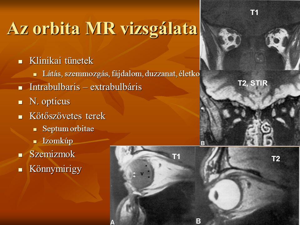 Az orbita MR vizsgálata Klinikai tünetek Klinikai tünetek Látás, szemmozgás, fájdalom, duzzanat, életkor Látás, szemmozgás, fájdalom, duzzanat, életkor Intrabulbaris – extrabulbáris Intrabulbaris – extrabulbáris N.