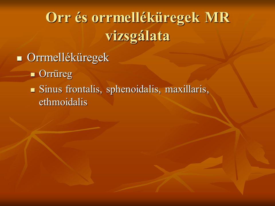 Orr és orrmelléküregek MR vizsgálata Orrmelléküregek Orrmelléküregek Orrüreg Orrüreg Sinus frontalis, sphenoidalis, maxillaris, ethmoidalis Sinus frontalis, sphenoidalis, maxillaris, ethmoidalis