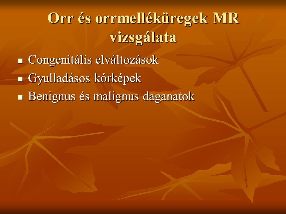 Orr és orrmelléküregek MR vizsgálata Congenitális elváltozások Congenitális elváltozások Gyulladásos kórképek Gyulladásos kórképek Benignus és malignus daganatok Benignus és malignus daganatok
