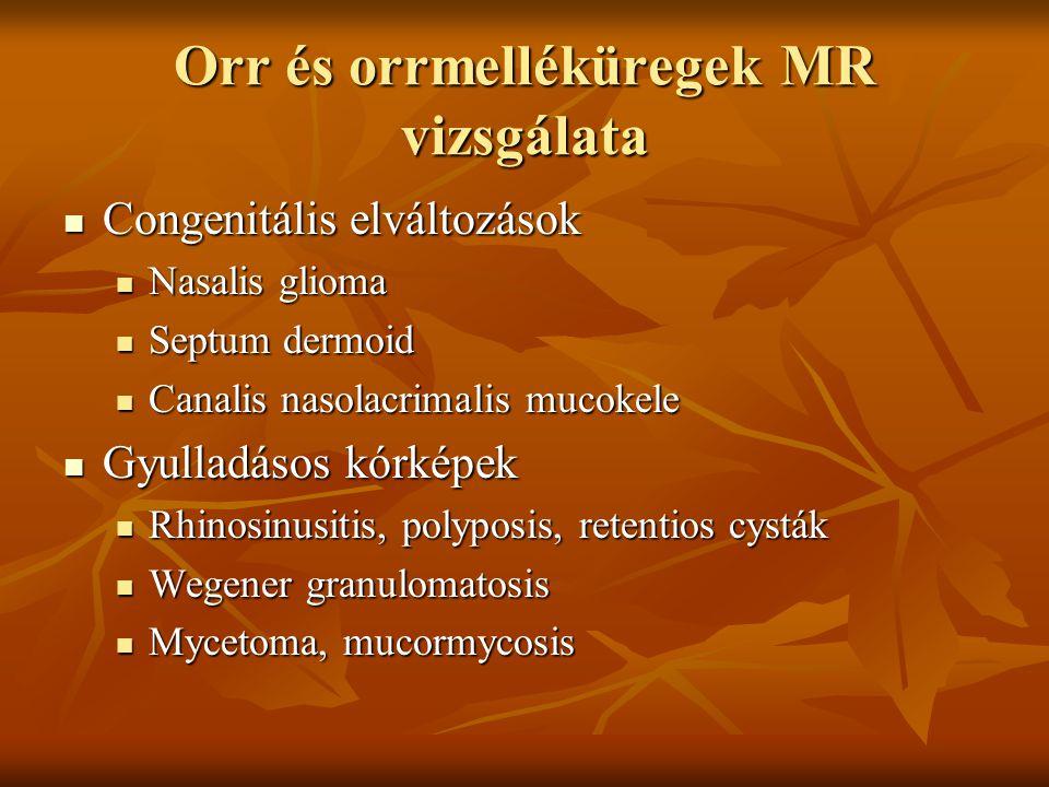 Orr és orrmelléküregek MR vizsgálata Congenitális elváltozások Congenitális elváltozások Nasalis glioma Nasalis glioma Septum dermoid Septum dermoid Canalis nasolacrimalis mucokele Canalis nasolacrimalis mucokele Gyulladásos kórképek Gyulladásos kórképek Rhinosinusitis, polyposis, retentios cysták Rhinosinusitis, polyposis, retentios cysták Wegener granulomatosis Wegener granulomatosis Mycetoma, mucormycosis Mycetoma, mucormycosis
