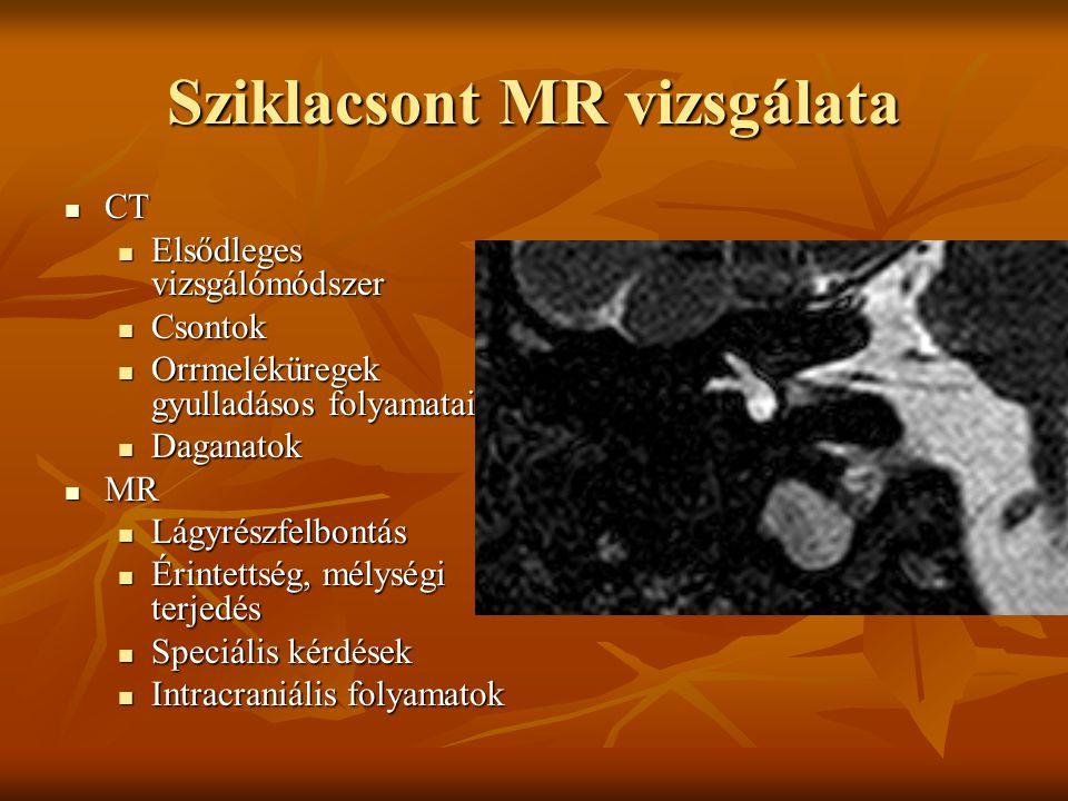 Sziklacsont MR vizsgálata CT CT Elsődleges vizsgálómódszer Elsődleges vizsgálómódszer Csontok Csontok Orrmeléküregek gyulladásos folyamatai Orrmeléküregek gyulladásos folyamatai Daganatok Daganatok MR MR Lágyrészfelbontás Lágyrészfelbontás Érintettség, mélységi terjedés Érintettség, mélységi terjedés Speciális kérdések Speciális kérdések Intracraniális folyamatok Intracraniális folyamatok